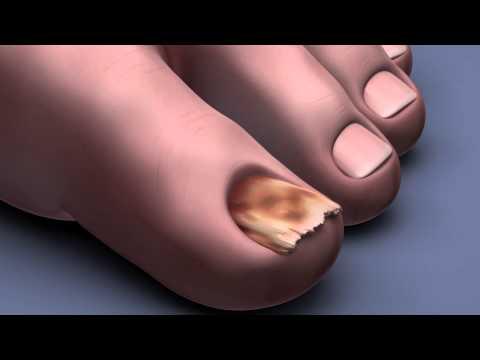 Болка в бъбреците при захарен диабет