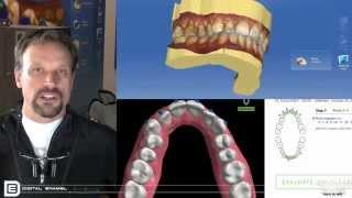 Digital Enamel - DE In 3 Cerec Ortho