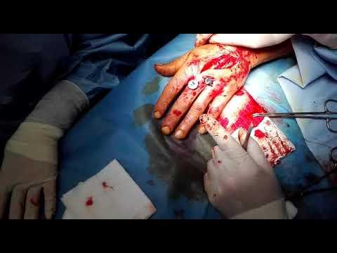 Delle articolazioni delle dita escrescenze