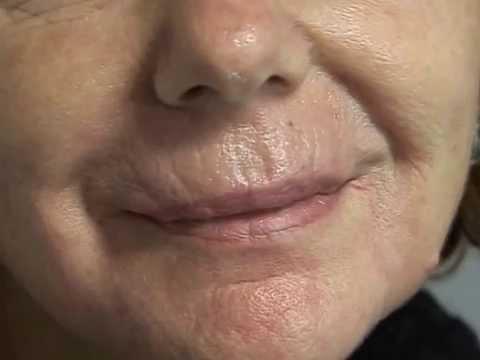 I pacchi di faccia di decolorazione e il collo per