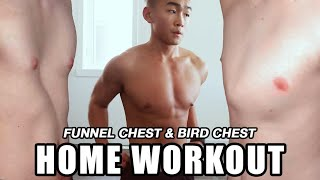 HOME WORKOUT FOR FUNNEL CHEST AND PIGEON CHEST
