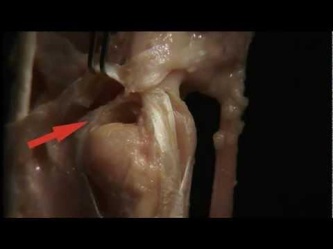 Gelenkprothese Fersen