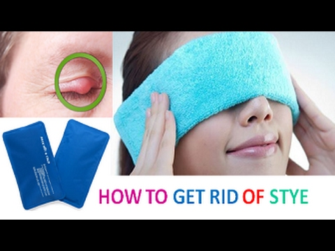 Video Home Remedies to Get Rid of Stye Fast, Safely and Naturally