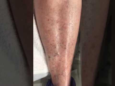 Eczema su una cisti di mani