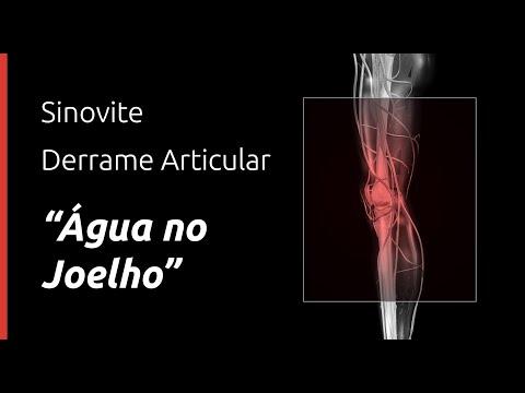 Tratamentul cu dimexid al genunchiului