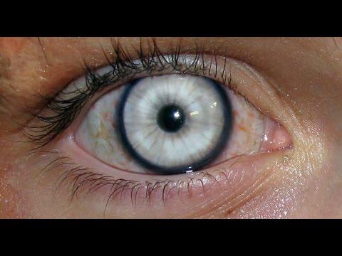 Какие контактные линзы нужны при близорукости