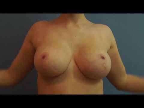 Evgeniya feofilaktova la operación en el pecho