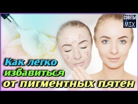 Как избавится от веснушек в косметологии
