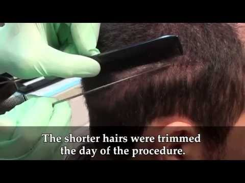 Dr. Brett Bolton Another Undetectable Hair Transplant Scar