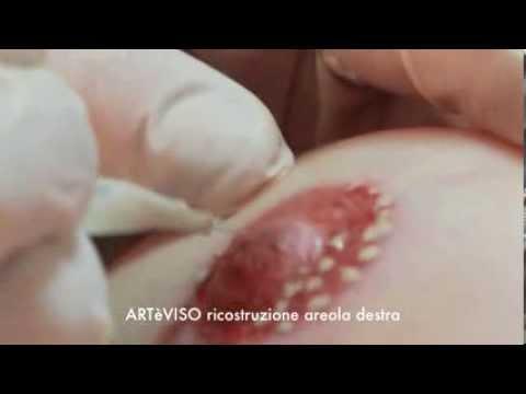 Trattamento di osteochondrosis in Krasnodar