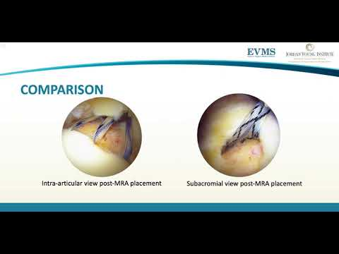 Thumbnail image of video presentation for Optimizing Anchor Placement for Cone-Shaped Rotator Cuff Tears