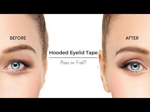 Hooded Eyelid Tape | Does It Work?