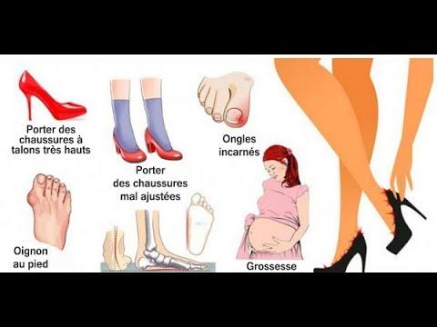Le traitement de la varicosité sur les pieds chez lhomme par les moyens nationaux