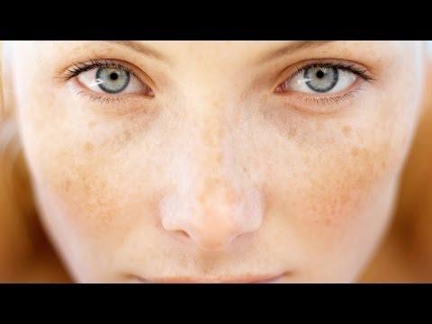 Как убрать пигментация с лица