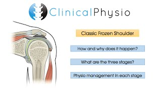 Classic Frozen Shoulder | Clinical Physio