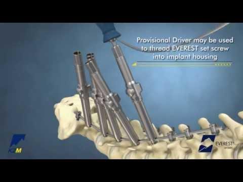 Behandlung von Wirbelsäulenbruch