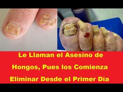 La atutía del hongo de las uñas el precio