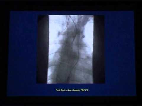 Norma diferenței dintre tensiunea arterială superioară și inferioară