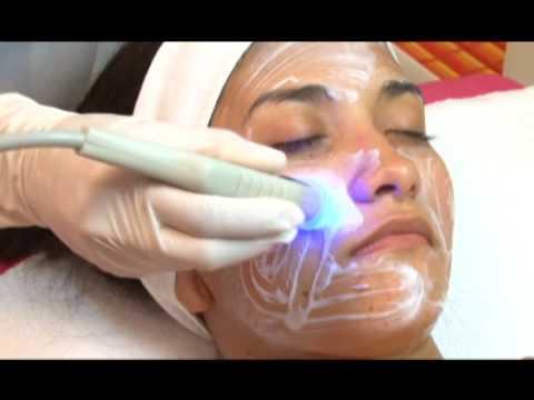 Laser ng buhok facial Ufa