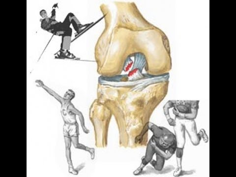 Восстановление суставов колен Упражнения и рецепт