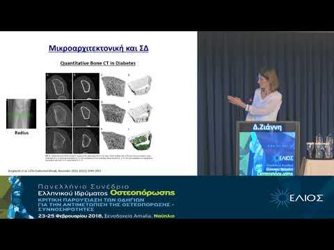 Ζιάννη Δ. - ΣΔ2 Οστικός μεταβολισμός