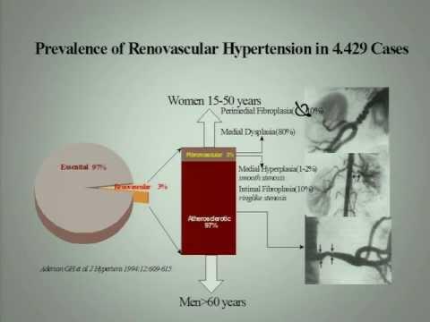 Παραδείγματα θεραπεία της υπέρτασης