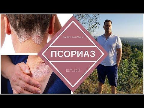 Псориаз. Истинные причины Псориаза и лечение