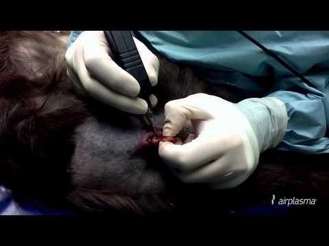 Dopo lintervento chirurgico per BPH