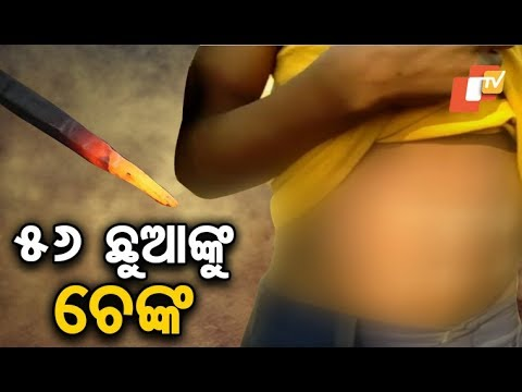 56 children branded with hot iron to cure ailments in Keonjhar