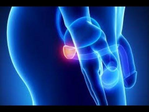 Pelvica prostata di imaging