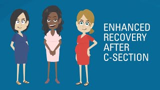 Improving C-Section Recovery: The ERAS Program Helps You Heal