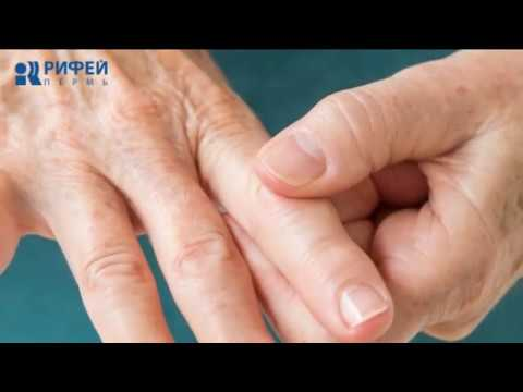 Unguente eficiente pentru durerea articulațiilor genunchiului