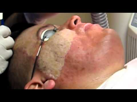 Mapanganib kung laser buhok pagtanggal facial