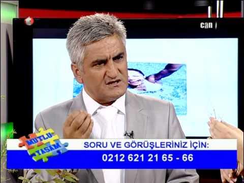 Die Rezensionen über die Behandlung der Schuppenflechte in aserbajdschane