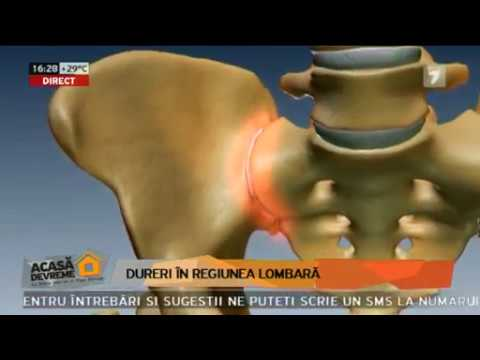 Unguente gel pentru dureri articulare