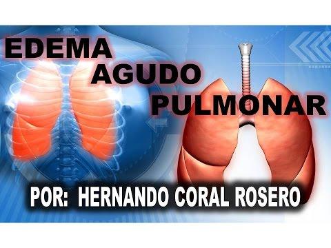 El estándar de oro para el diagnóstico de la hipertensión pulmonar
