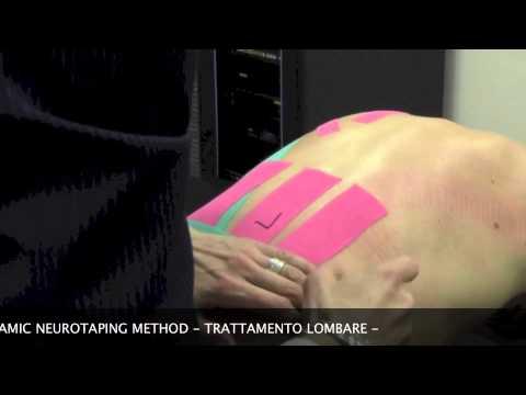 Stabilizzazione dellarticolazione del ginocchio