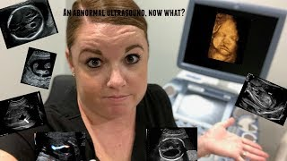 COMMON ABNORMAL ULTRASOUND FINDINGS, NOW WHAT?