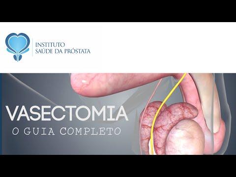 Como sentir o dedo de próstata no intestino