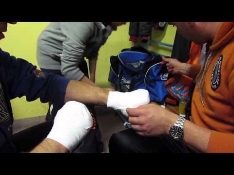 Come togliere una vena su una gamba con il laser