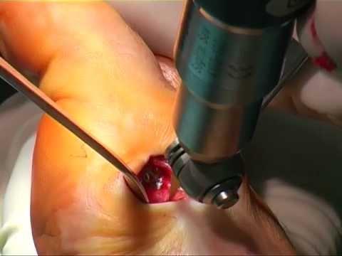 Zervikale Osteochondrose Behandlungsmethoden