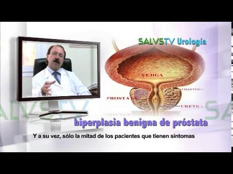 Calcificación del parénquima de la glándula prostática