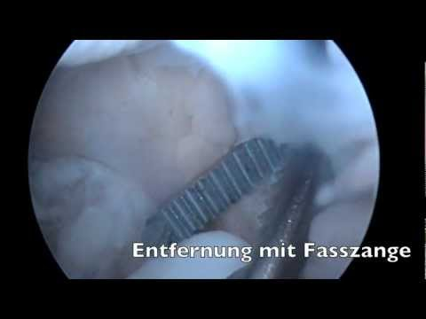 Was droht Herniation in der Halswirbelsäule