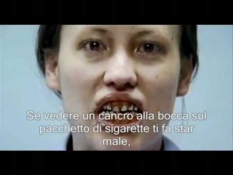 Dipendenze fumando polmoni