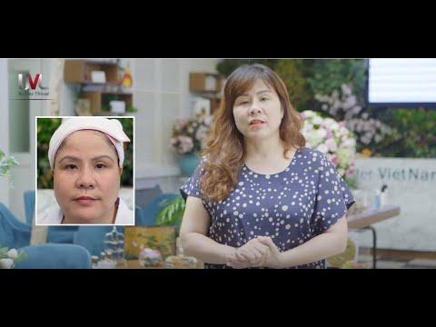 Feedback Nâng cơ mặt chỉ Ultra V Lift - Bác sĩ Lan Hương