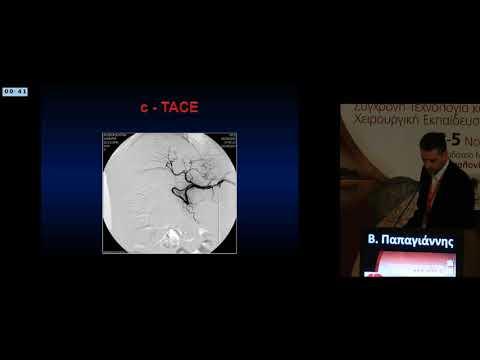 Β Παπαγιάννης - Αντιμετώπιση πρωτοπαθών όγκων ήπατος Ο ρόλος του επεμβατικού ακτινολόγου