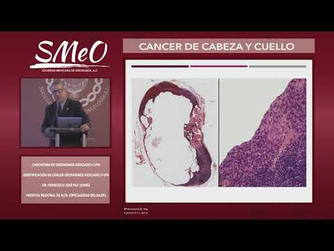 Pancreatic cancer en