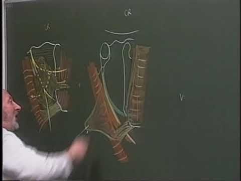 Chirurgie artroză 4 grade la genunchi
