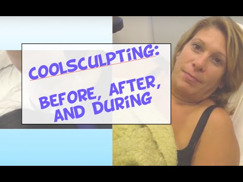 Coolsculpting: before, after, during