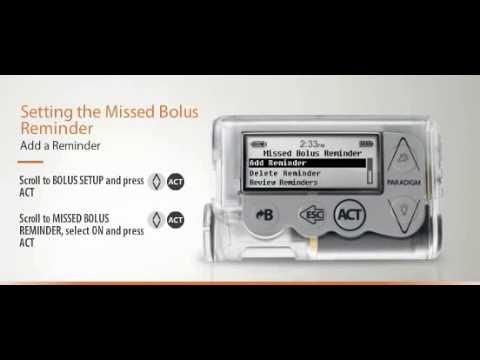 VIŠE SLOBODE:  Razumijevanje bazalnih i bolusnih postavki na uređaju MiniMed™ Veo™